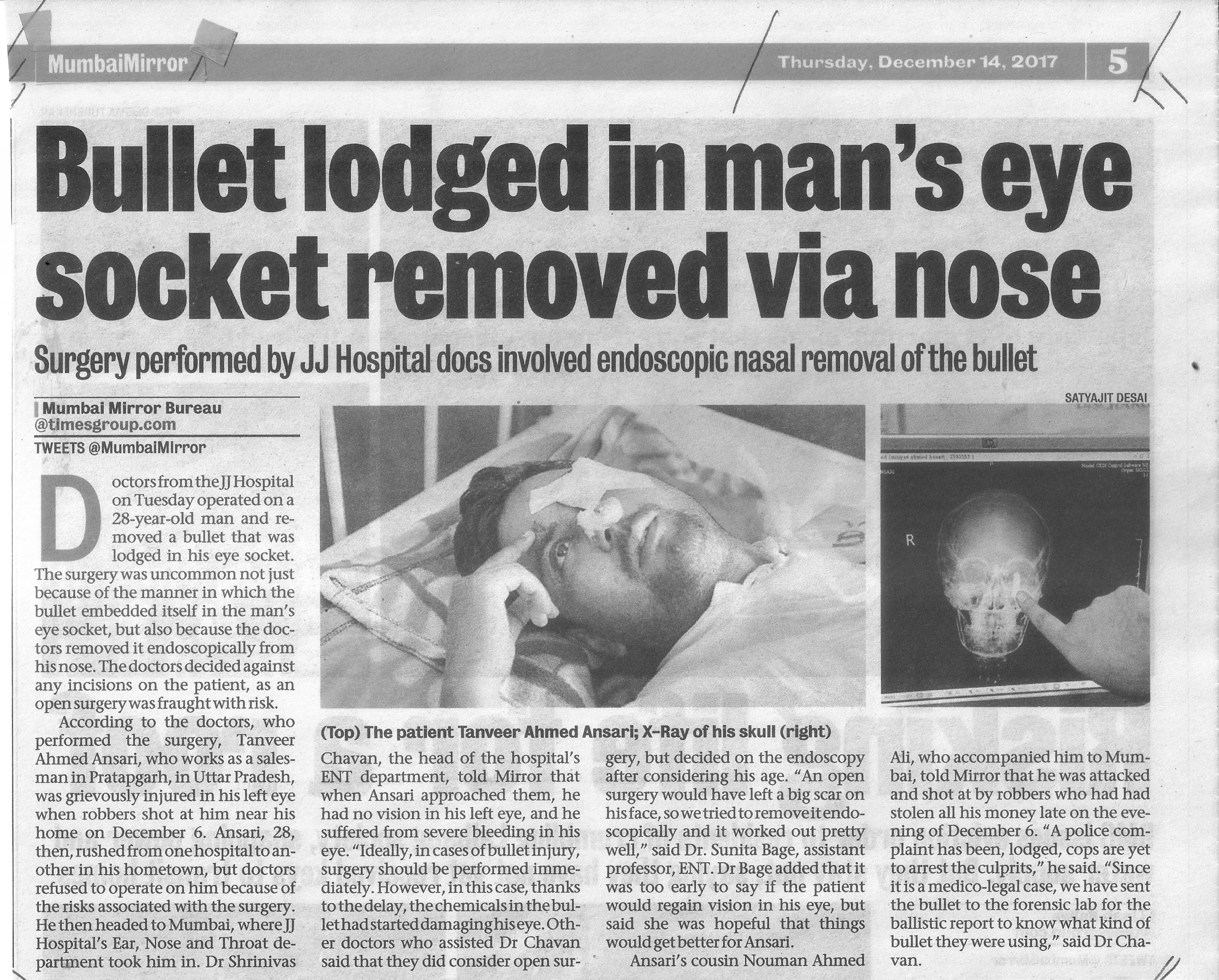 Bullet lodged in man's eye socket removed via nose (Mirror Thu 14 Mar17 pg.5)